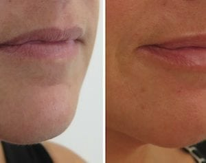 Lip enhancement at S-Thetics – Patient success story