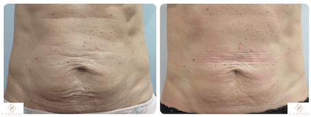 Patient Success Story – Post pregnancy tummy skin tightening