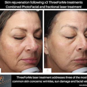 Patient Success Story – Combination Laser Treatment for Skin Rejuvenation