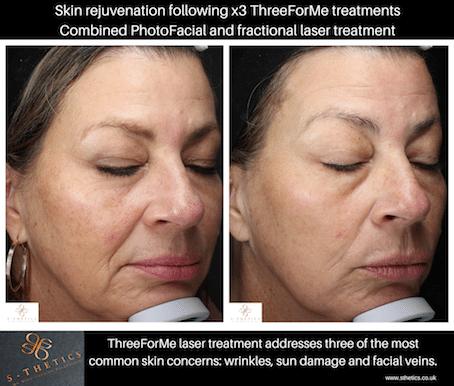 Facial laser successful treatment vein