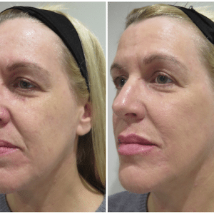 Patient Success Story – Facial Filler Treatment