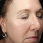 reduce-facial-redness-at-S-Thetics-Skin-Clinic
