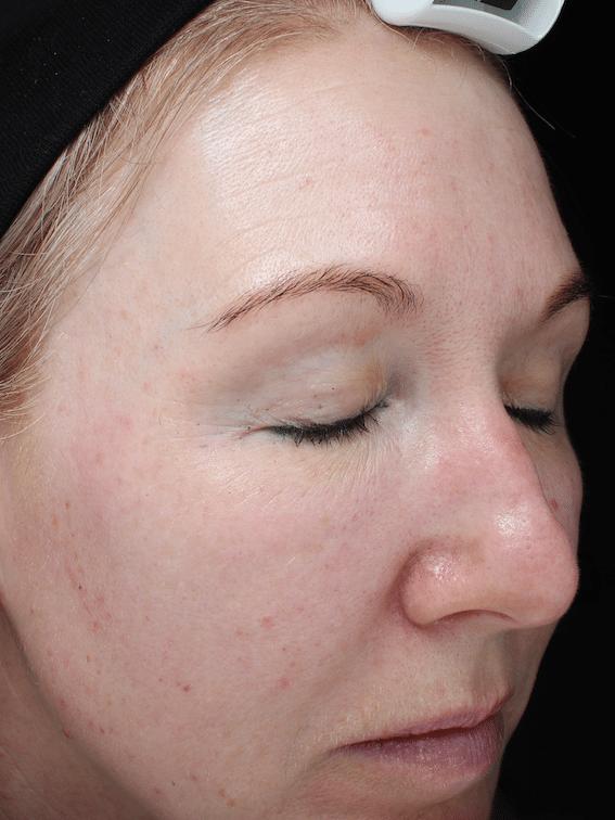 improve-skin-health-skin-clinic-beaconsfield-S-Thetics