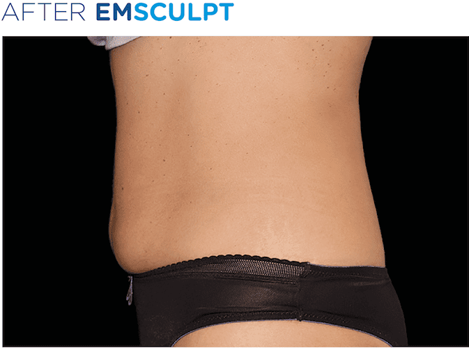 EMSculpt-before-and-after-S-Thetics-Aesthetic-Clinic-in-Buckinghamshire