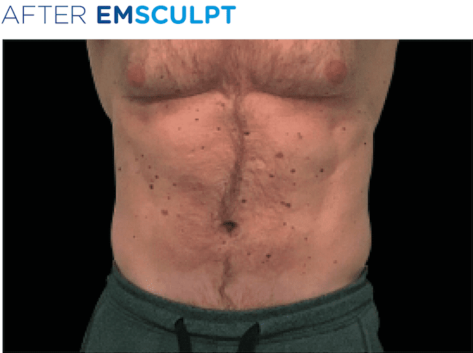BTL-EMSculpt-available-at-S-Thetics-Skin-Clinic-in-Beaconsfield