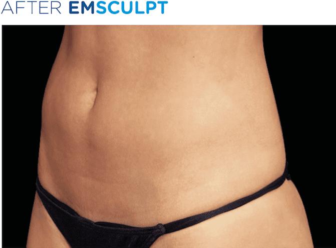 EMSculpt | S-Thetics