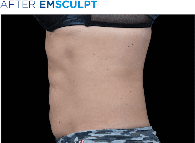 BTL-EMSculpt-available-at-S-Thetics-Clinic-Buckinghamshire-before-and-after