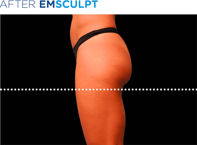 BTL-EMSculpt-non-surgical-booty-lift-available-at-S-Thetics-Aesthetic-Clinic-in-Buckinghamshire