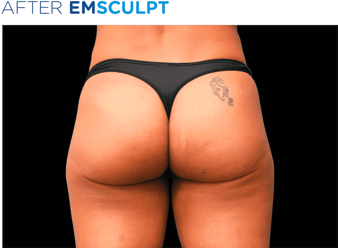 BTL-EMSculpt-non-surgical-buttock-lift-available-at-S-Thetics-Aesthetic-Clinic-in-Beaconsfield-Buckinghamshire