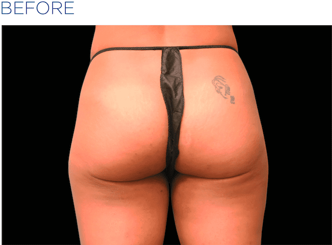 BTL-EMSculpt-non-surgical-buttock-lift-available-at-S-Thetics-Aesthetic-Clinic-in-Buckinghamshire