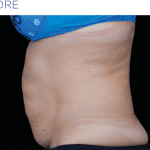 EMSculpt-before-and-after-S-Thetics-Aesthetic-Clinic-in-Beaconsfield-Buckinghamshire