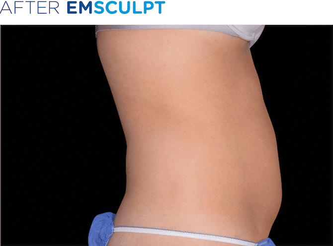 EMSculpt-available-at-S-Thetics-Clinic-in-Buckinghamshire