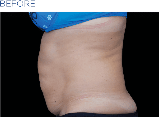 BTL-EMSculpt-available-at-S-Thetics-Clinic-before-and-after