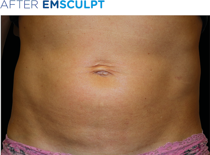 EMSculpt-before-and-after-S-Thetics-Aesthetic-Clinic-Buckinghamshire