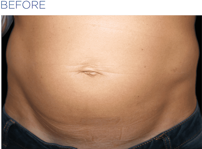 EMSculpt-before-and-after-S-Thetics-Clinic