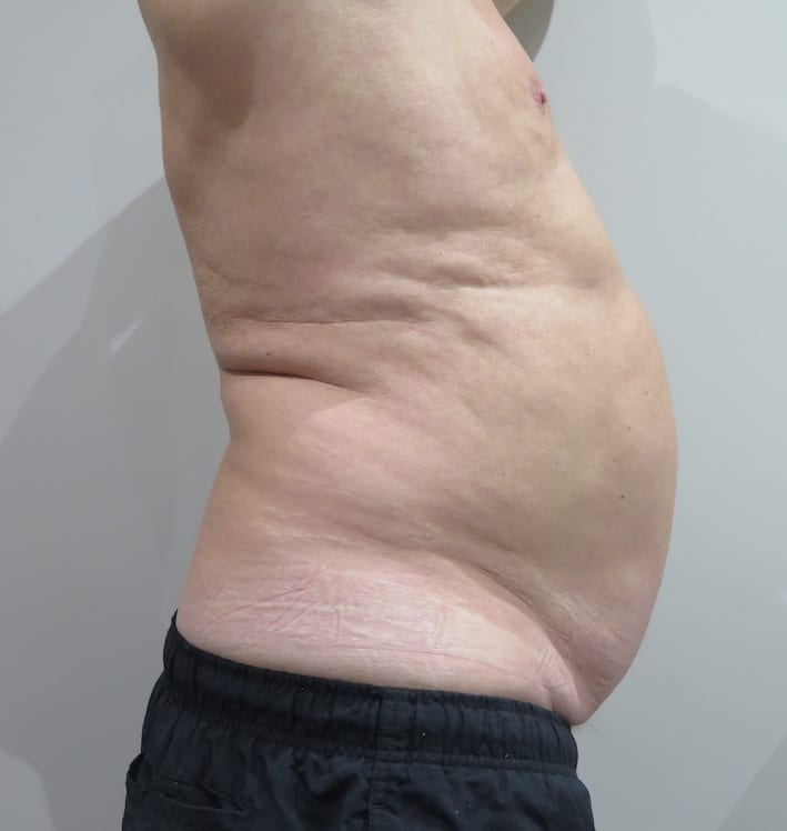 EMSculpt-before-and-after-S-Thetics-Clinic-in-Buckinghamshire
