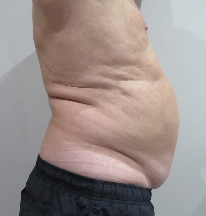 EMSculpt-before-and-after-S-Thetics-Clinic-in-Beaconsfield-Buckinghamshire