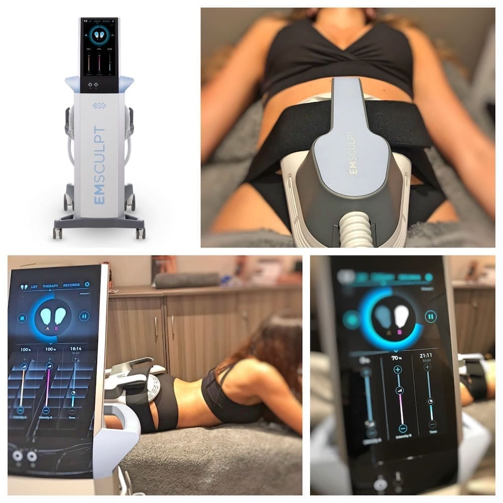 EMSculpt-build-muscle-burn-fat-at-S-Thetics-Skin-Clinic-in-Beaconsfield