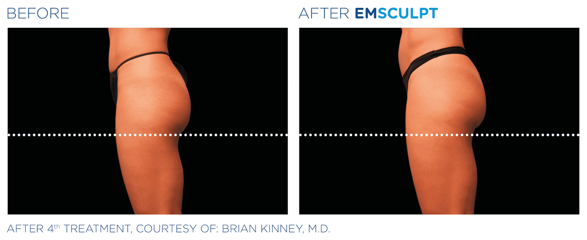 EMSculpt-build-muscle-burn-fat-at-S-Thetics-Aesthetic-Clinic-in-Beaconsfield-Buckinghamshire