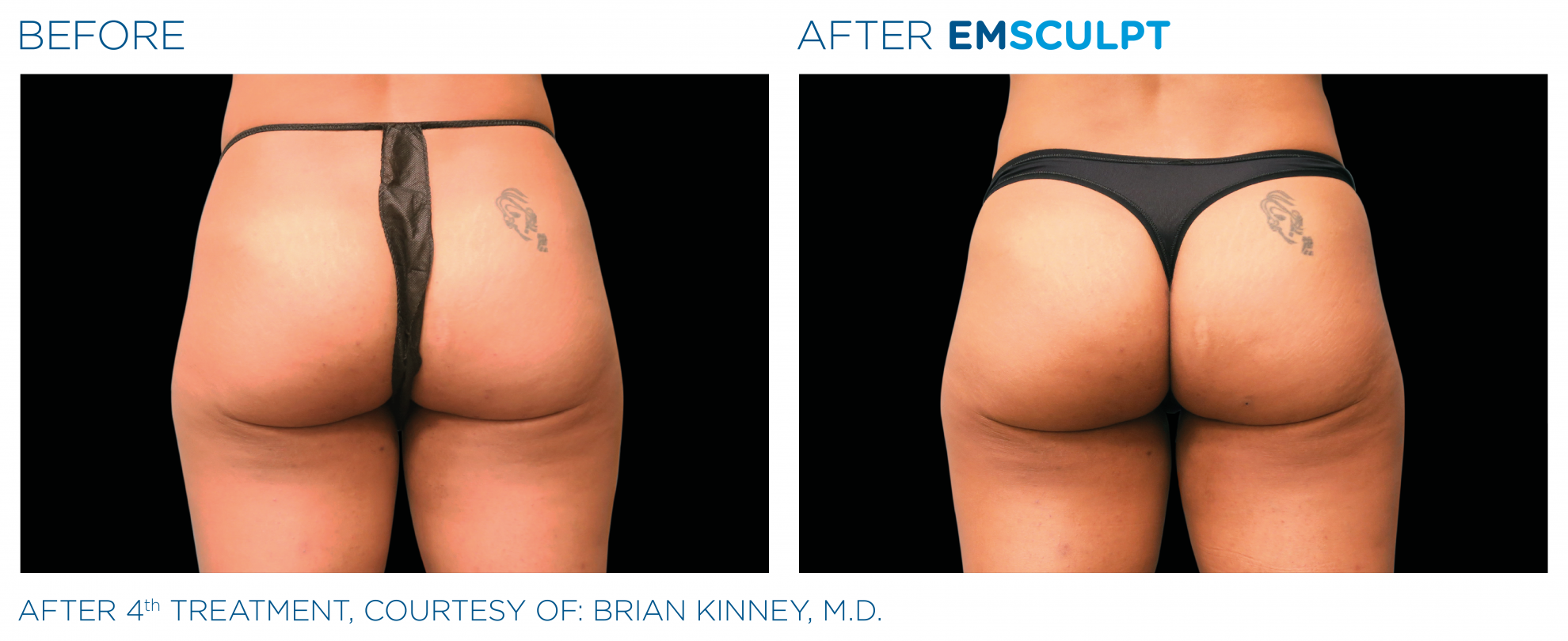 EMSculpt-build-muscle-burn-fat-at-S-Thetics-Aesthetic-Clinic-in-Beaconsfield