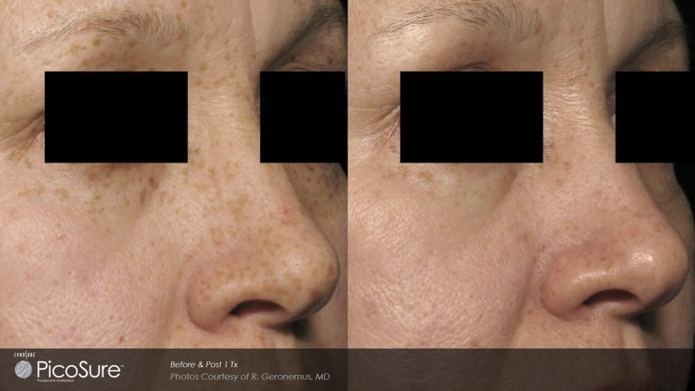 Picosure-laser-skin-rejuvenation-at-S-Thetics-Aesthetic-Clinic-in-Buckinghamshire