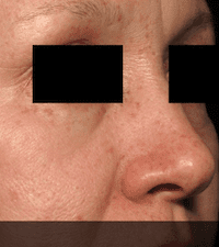 Picosure-laser-skin-rejuvenation-at-S-Thetics-Clinic-After
