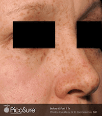 Picosure-laser-skin-rejuvenation-at-S-Thetics-Clinic-Before