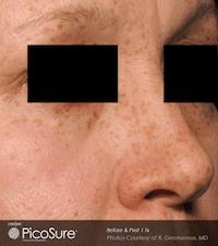 Picosure-laser-skin-rejuvenation-at-S-Thetics-Clinic-Before