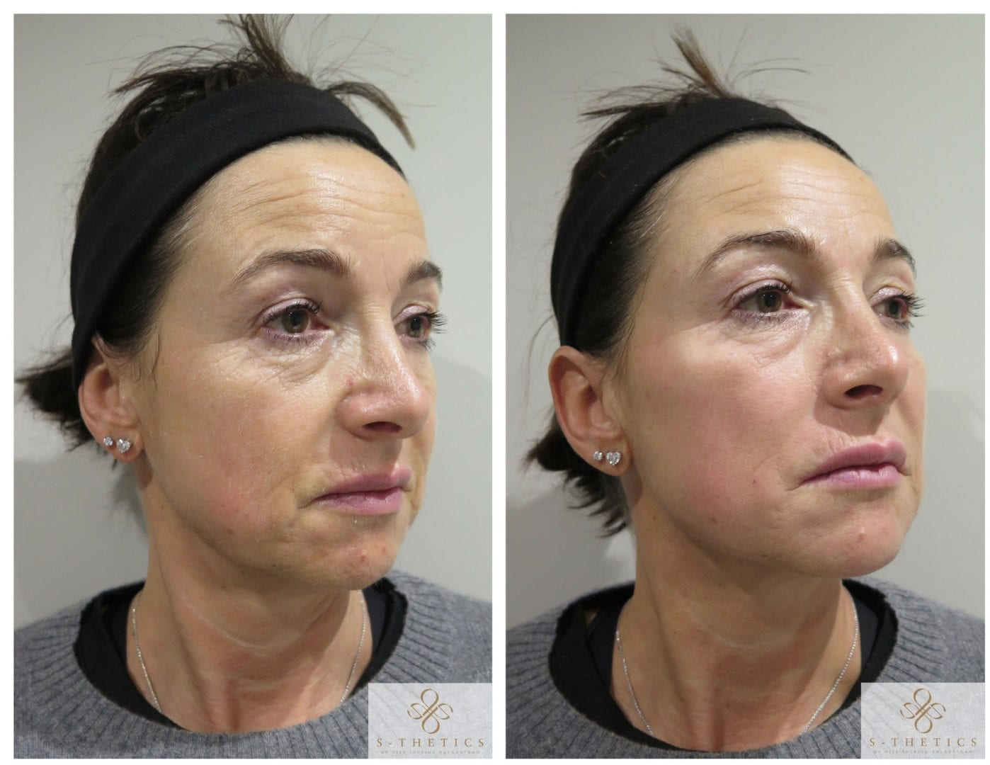 dermal-filler-treatment-at-S-Thetics-Skin-Clinic-in-Beaconsfield-Buckinghamshire-