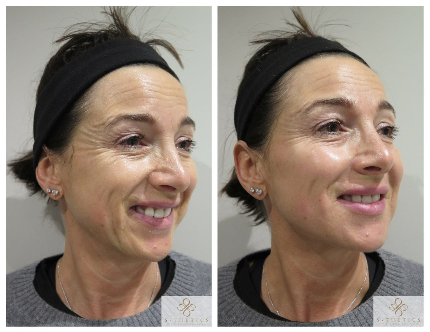 Patient Success Story – Facial Filler Treatment at S-Thetics Clinic
