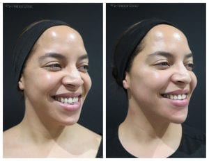 treating-twins-with-Juvederm-facial-fillers-at-S-Thetics-Clinic