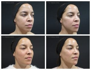Treating-twins-with-Juvederm-Volux-and-Voluma-at-S-Thetics-Clinic