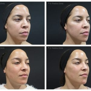 Patient Success Story – treating identical twins with Juvederm Volux & Voluma facial fillers