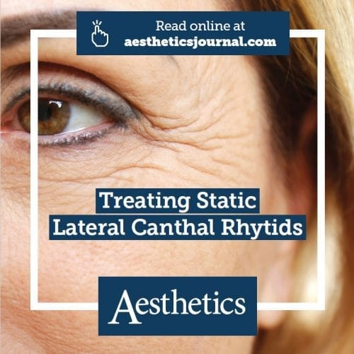 Aesthetics Journal Expert Opinion – Treating Static Lateral Canthal Rhytids ('Crow's Feet')