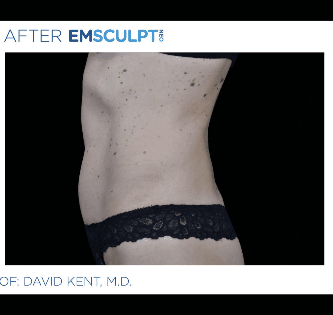 EMSCULPT-NEO-before-and-after-at-S-Thetics-Clinic-in-Beaconsfield-