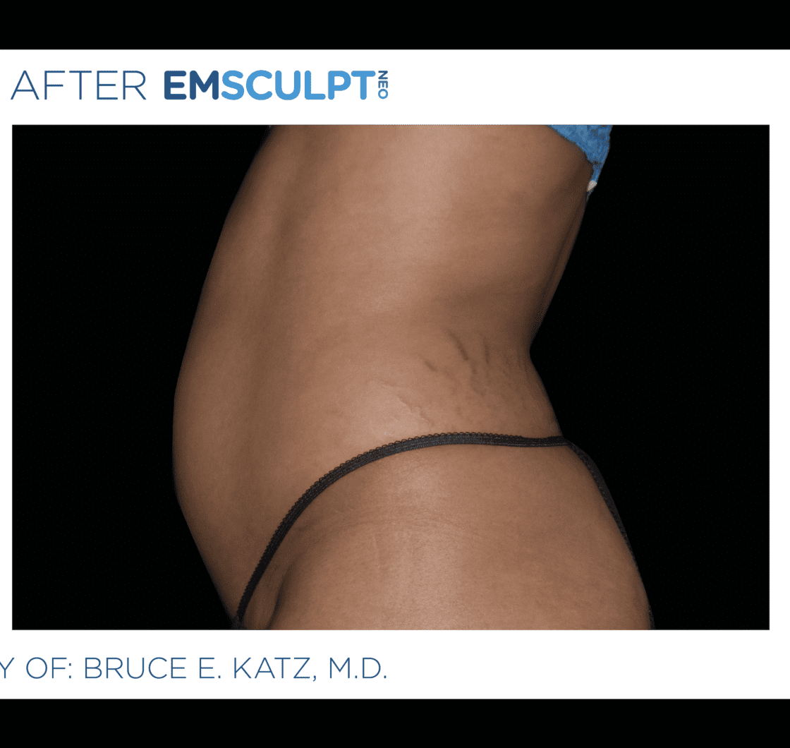EMSCULPT-NEO-before-and-after-at-S-Thetics-Clinic-in-Beaconsfield-Buckinghamshire